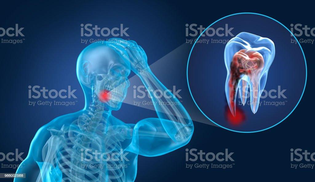 Teeth pain, man suffering from teeth pain. 3D illustration - Royalty-free Anatomy Stock Photo