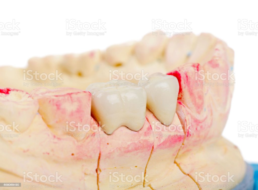 Teeth rehabilitation royalty-free stock photo