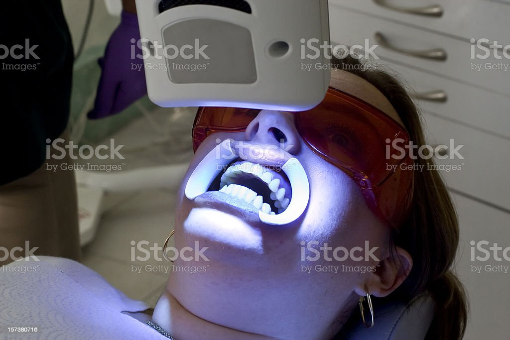 Teeth Whitening Beam Close Up royalty-free stock photo