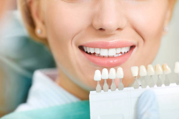 Teeth whitening dental clinic. stock photo