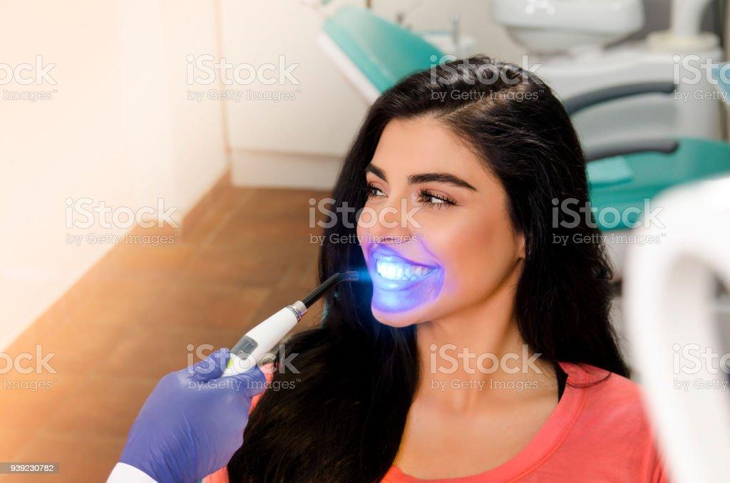 Zahnaufhellung hübsche Frau – Foto