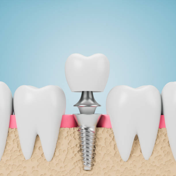 Teeth with implant screw, blue background stock photo