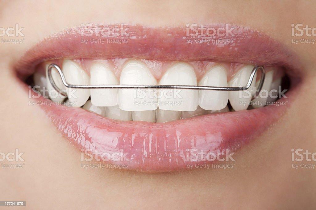 Zähne mit auf Vorschussbasis - Lizenzfrei Attraktive Frau Stock-Foto