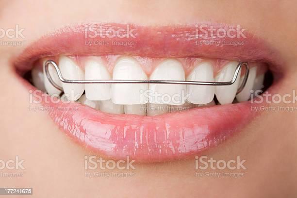 Zähne Mit Auf Vorschussbasis Stockfoto und mehr Bilder von Attraktive Frau