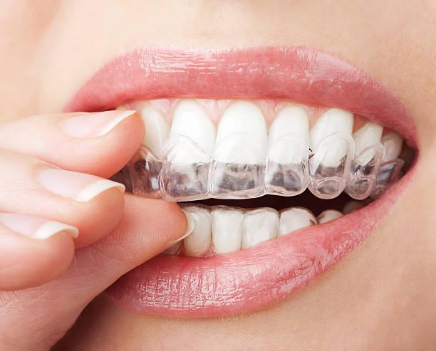 teeth with whitening tray - tanden bleken stockfoto's en -beelden