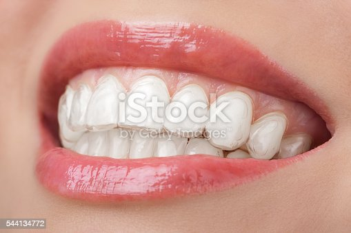 istock teeth with whitening tray smile dental 544134772