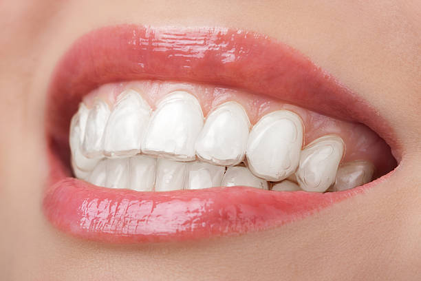 teeth with whitening tray smile dental stock photo