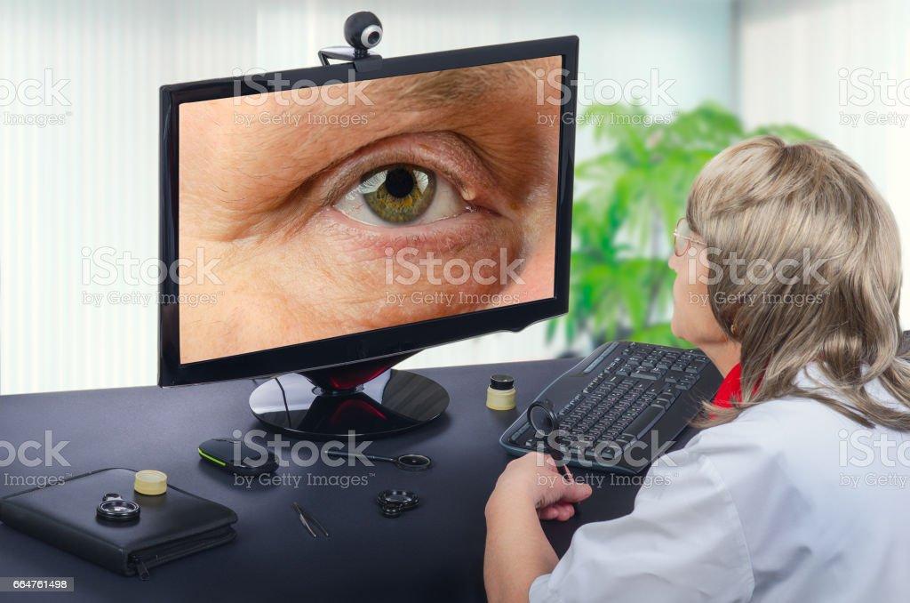 Telemedicine eye doctor observes eyelid cyst on computer stock photo