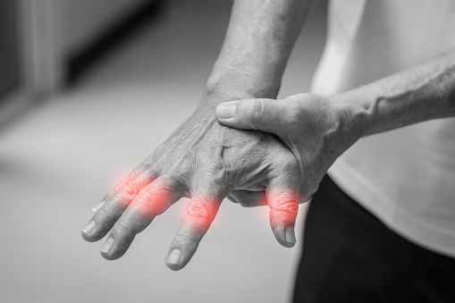 istock Tendinitis Overuse hand problems. Old man hand with red spot o fingers as suffer from Carpal tunnel syndrome. The symptoms of tingling, numbness, weakness, or pain of the fingers and wrist. 1183000961