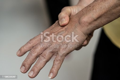 668285874 istock photo Tendinitis Overuse hand problems. Old man hand with red spot o fingers as suffer from Carpal tunnel syndrome. The symptoms of tingling, numbness, weakness, or pain of the fingers and wrist. 1198035061