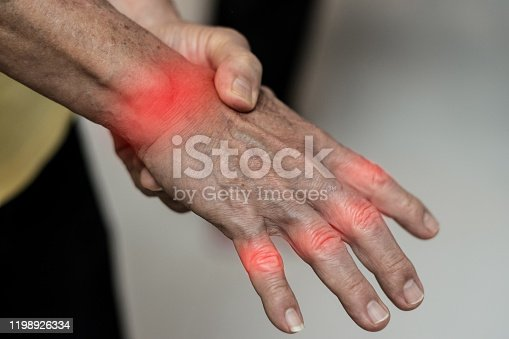 668285874 istock photo Tendinitis Overuse hand problems. Old man hand with red spot o fingers as suffer from Carpal tunnel syndrome. The symptoms of tingling, numbness, weakness, or pain of the fingers and wrist. 1198926334