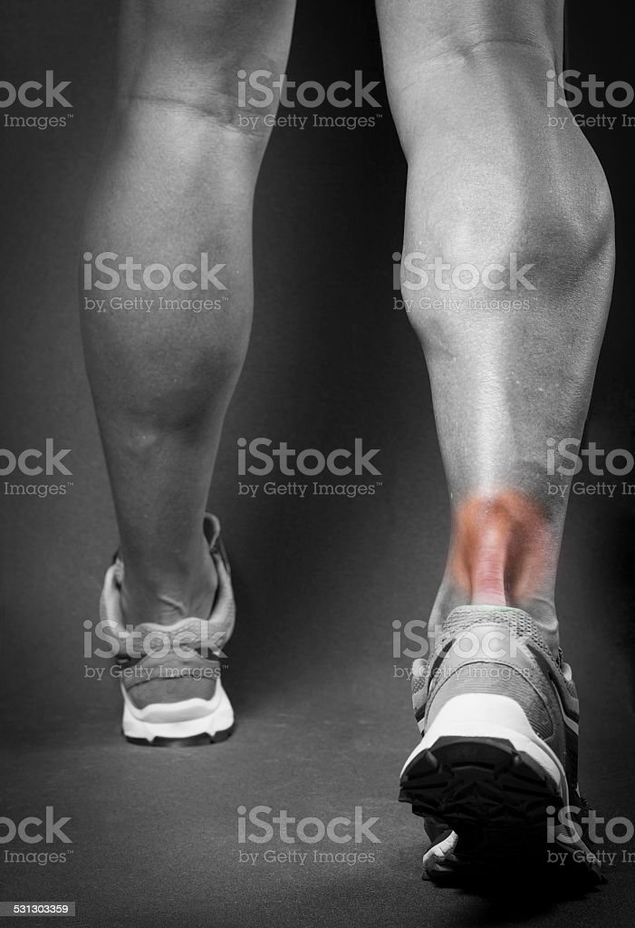 tendinitis stock photo