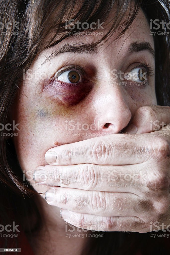 Terrified bruised and beaten woman with man's hand silencing her stock photo