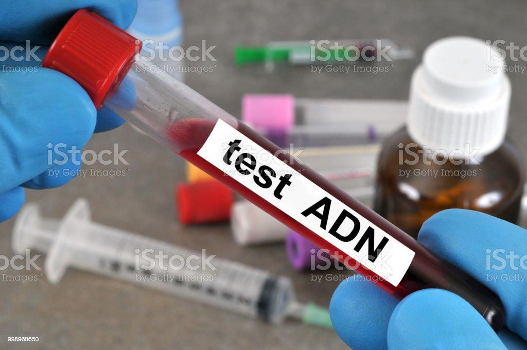 Test  ADN stock photo