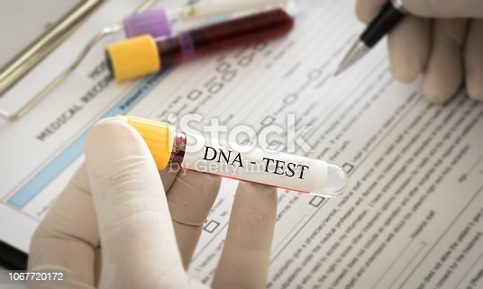 Scientist analyzing DNA result for check genetics and forensics science.