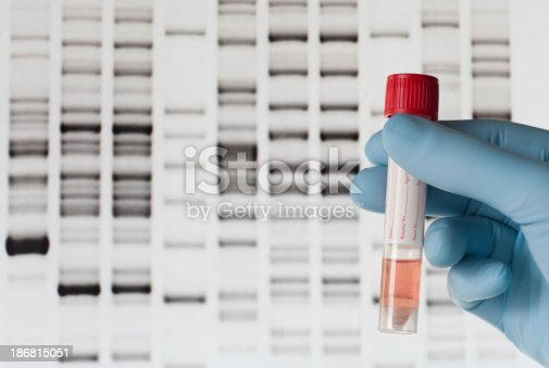 A hand with a blue medical gloves is holding a medical sample in front of a computer screen with the results of a DNA test.