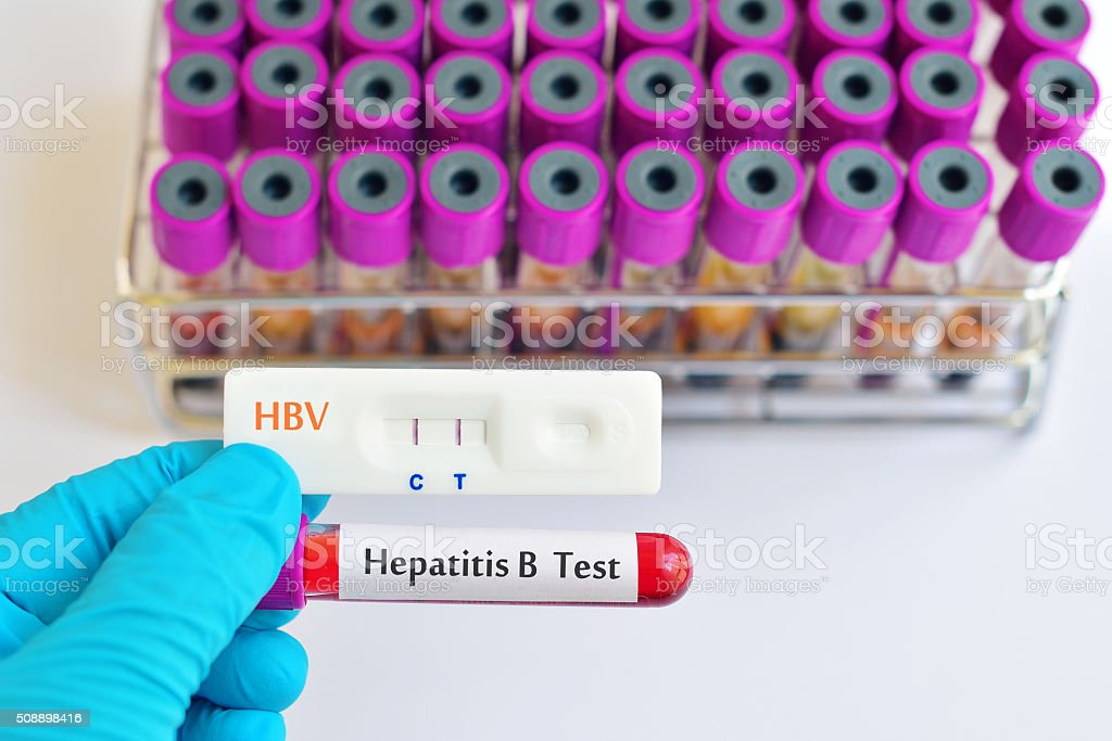 HBV test stock photo