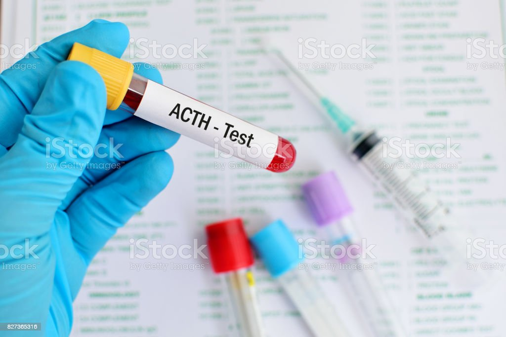 ACTH test stock photo