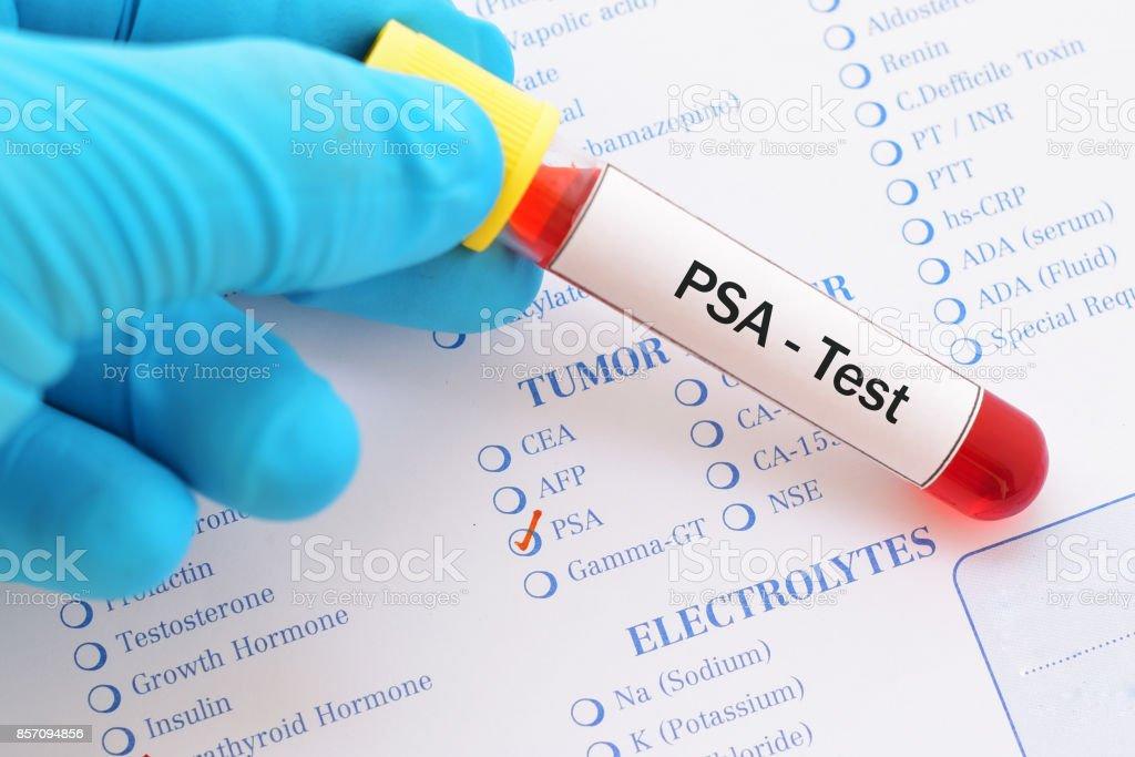 PSA test stock photo