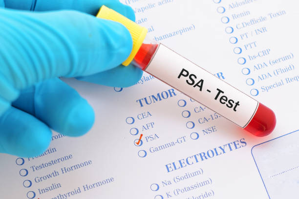 psa test - prostate exam stock pictures, royalty-free photos & images