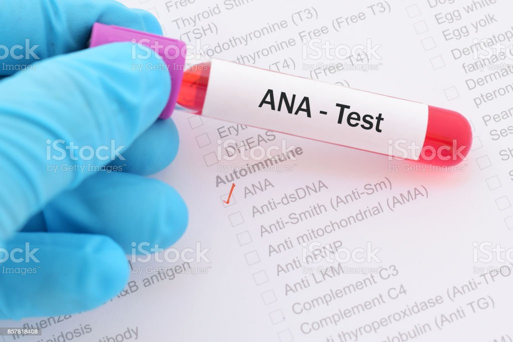 ANA test stock photo