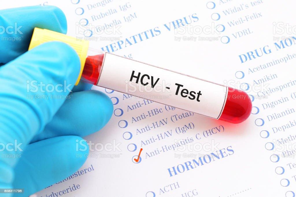 HCV test stock photo