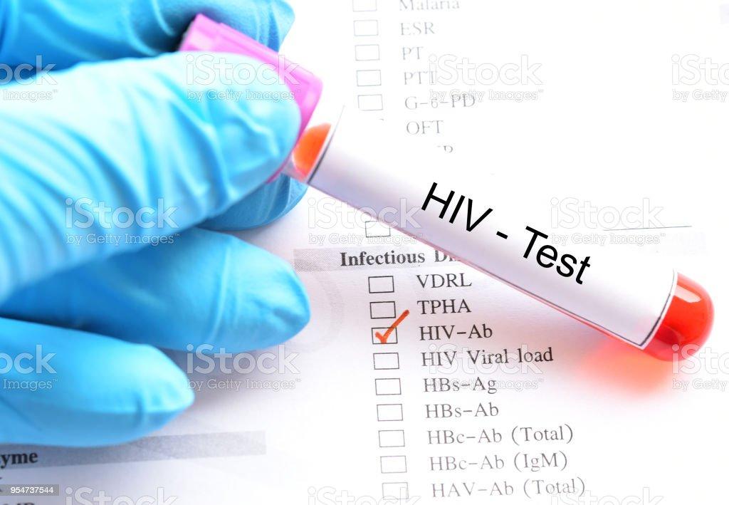 HIV test stock photo