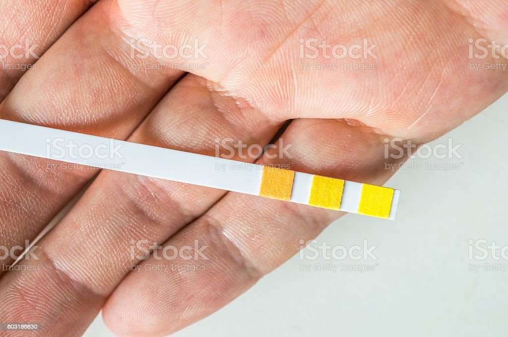 Test strip for urine analysis in hand. stock photo