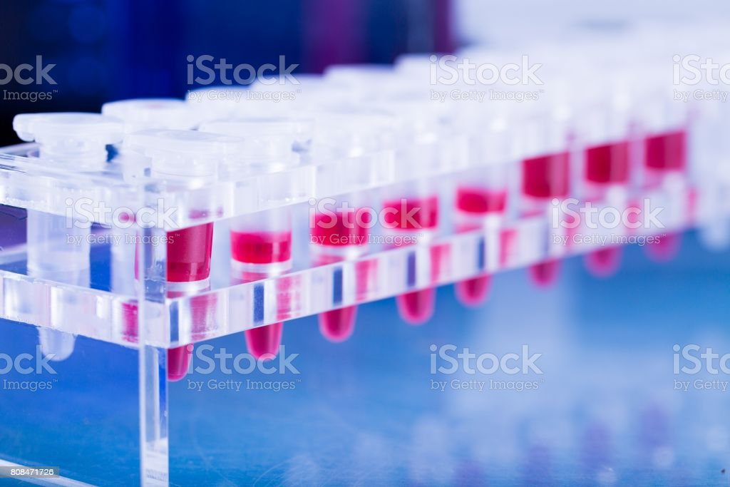 test tube for cancer  blood test stock photo