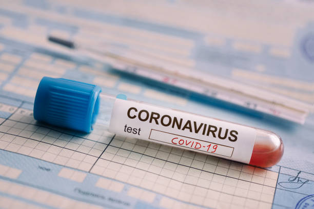 test tube with the blood test is on the table next to the documents. Positive test for coronavirus covid-19. concept of fighting a dangerous Chinese disease. stock photo