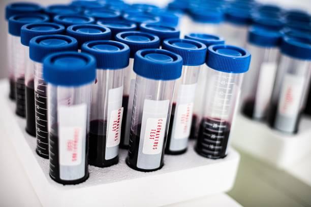 Test tubes with blood. Coronavirus test stock photo