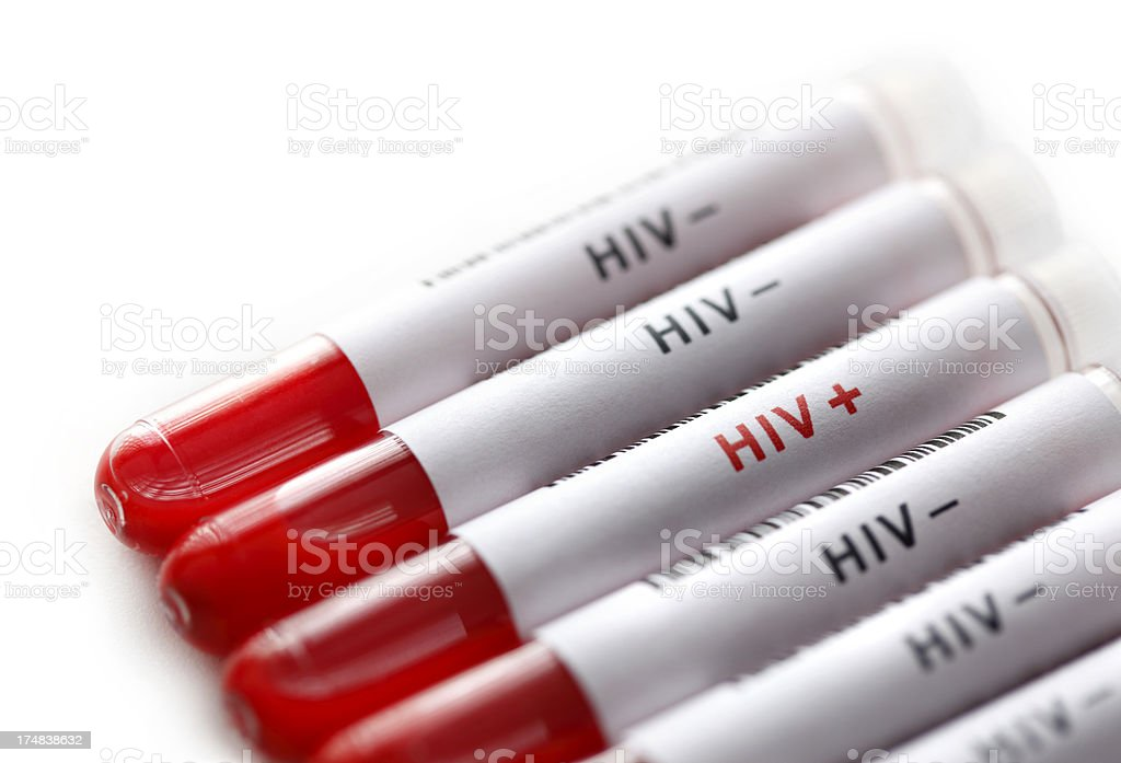 HIV tests stock photo