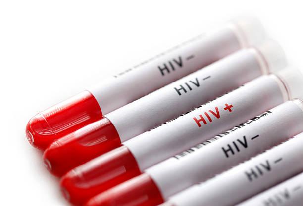 HIV tests stock photo