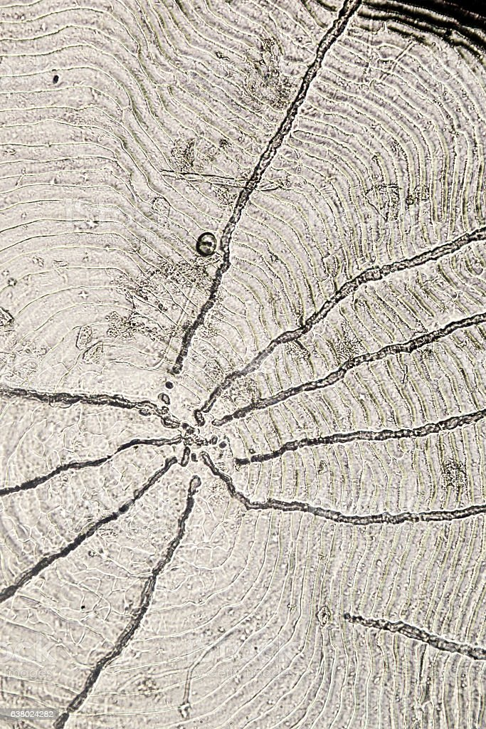 Textured surface of a roach scale stock photo