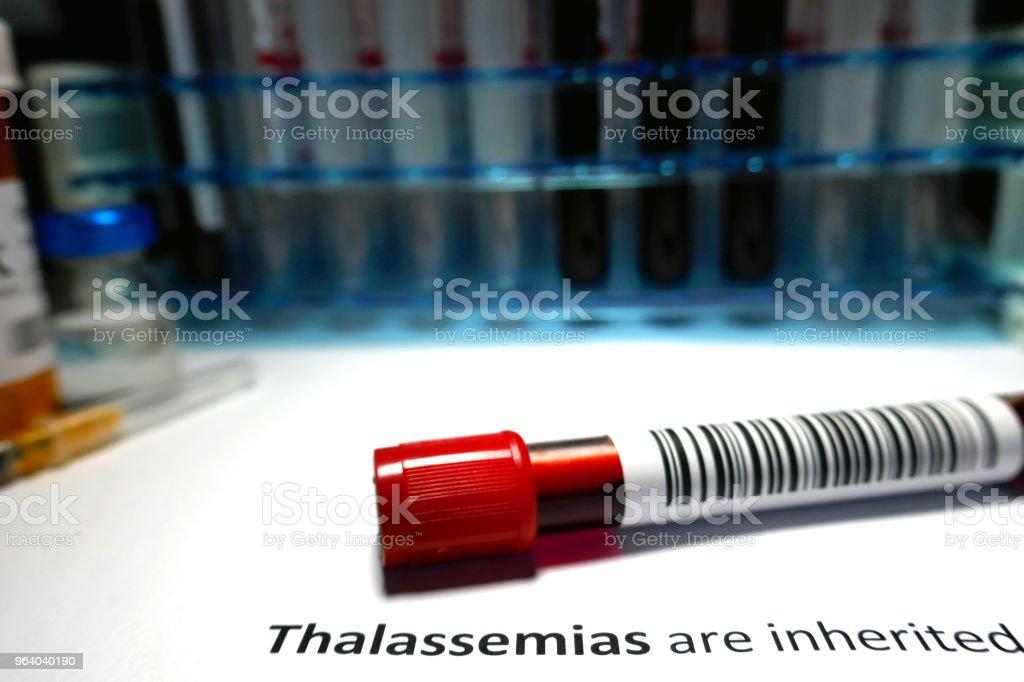 Thalassemia - Royalty-free Analyzing Stock Photo