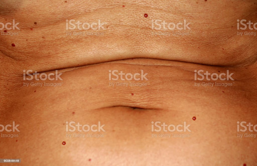 The abdomen is in red angiomas. Flabby wrinkled abdomen. The navel is...