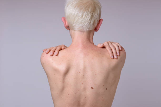 The back of a woman with many liver spots stock photo