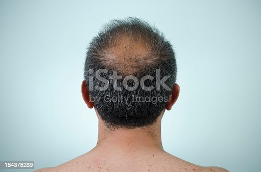 Balding, to become bald