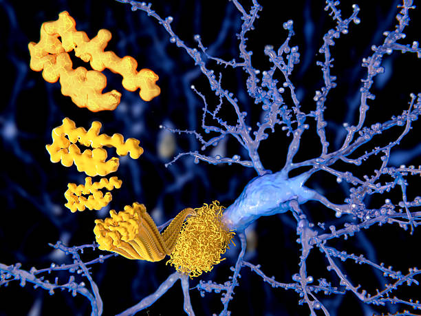 The beta amyloid peptid, amyloid plaques, Alzheimer disease stock photo