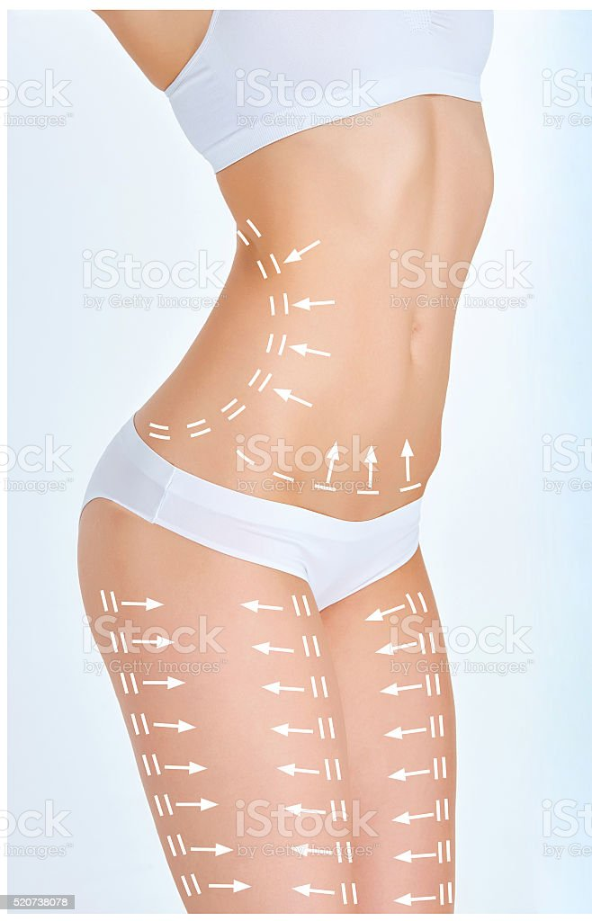 The cellulite removal plan. White markings on young woman body stock photo