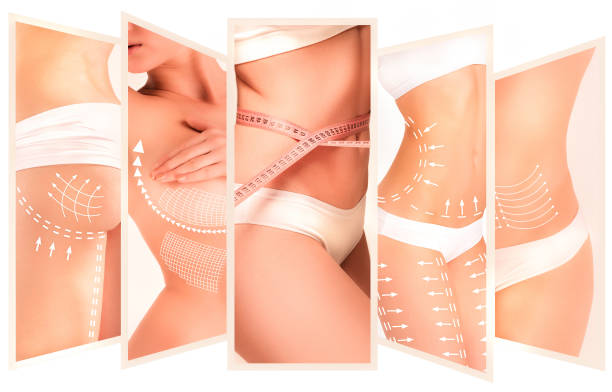 The cellulite removal plan. White markings on young woman body - foto stock
