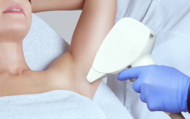 The cosmetologist does the laser hair removal procedure in the armpit zone, to a young woman in a beauty salon. stock photo
