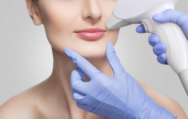 The cosmetologist does the procedure for laser hair removal of unwanted hair of the face to a young girl in a beauty salon. stock photo