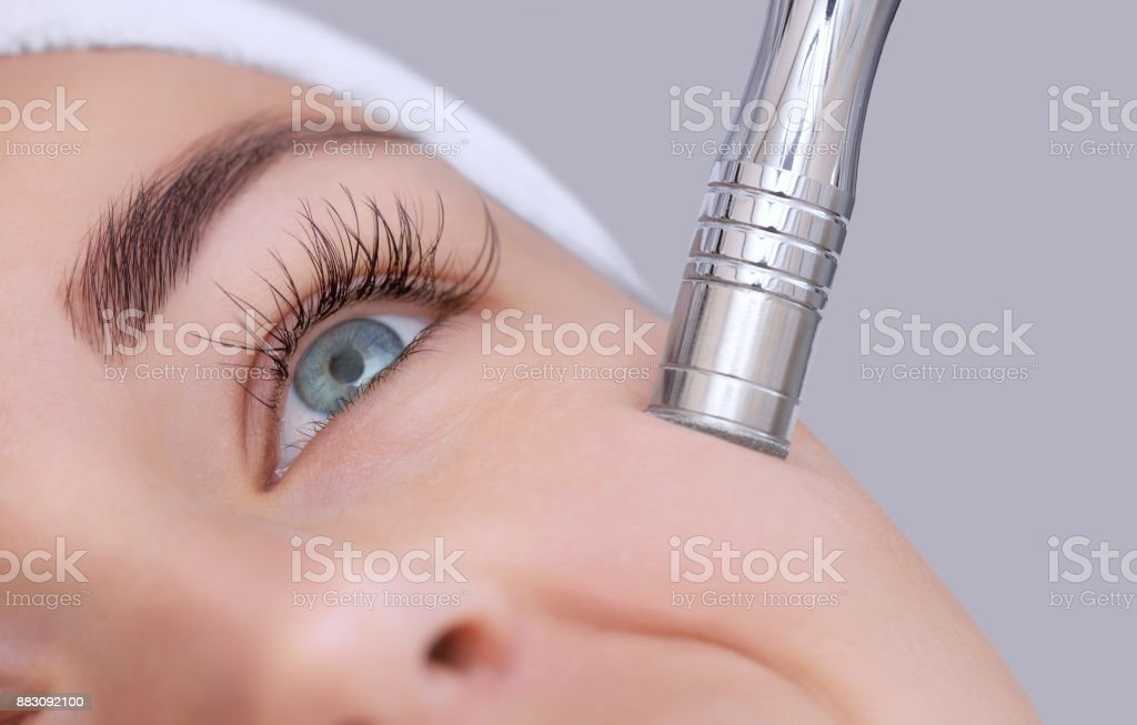 The cosmetologist makes the procedure Microdermabrasion of the facial skin stock photo