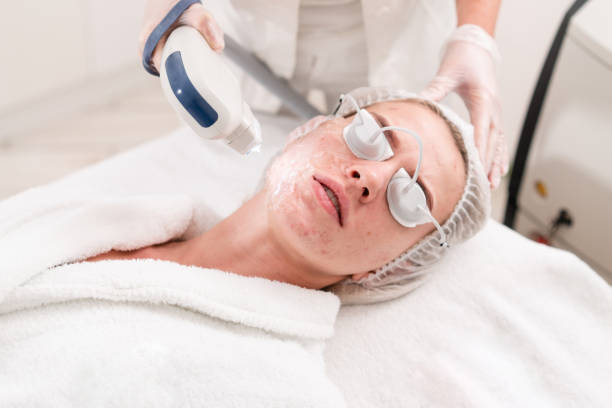 The doctor applies a special gel to the patient. Anti acne phototherapy with professional equipment. Beautiful woman during photo rejuvenation procedure. Face skin treatment at cosmetic clinic. stock photo