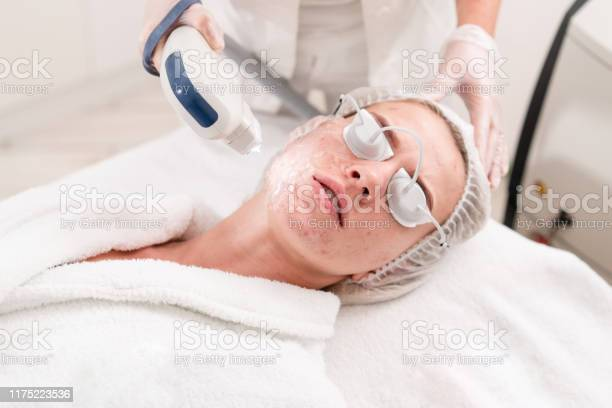 The Doctor Applies A Special Gel To The Patient Anti Acne Phototherapy With Professional Equipment Beautiful Woman During Photo Rejuvenation Procedure Face Skin Treatment At Cosmetic Clinic Stock Photo - Download Image Now