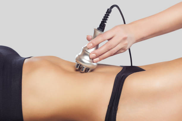 The doctor does the Rf lifting procedure on the abdomen and hips of a woman in a beauty parlor. stock photo