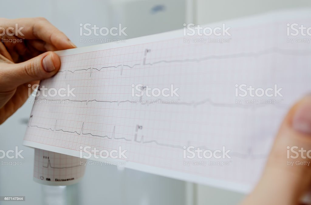 The doctor holds an encephalogram of a healthy patient stock photo