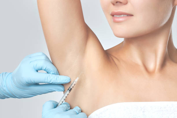 The doctor makes intramuscular injections of botulinum toxin in the underarm area against hyperhidrosis. Cosmetology skin care stock photo