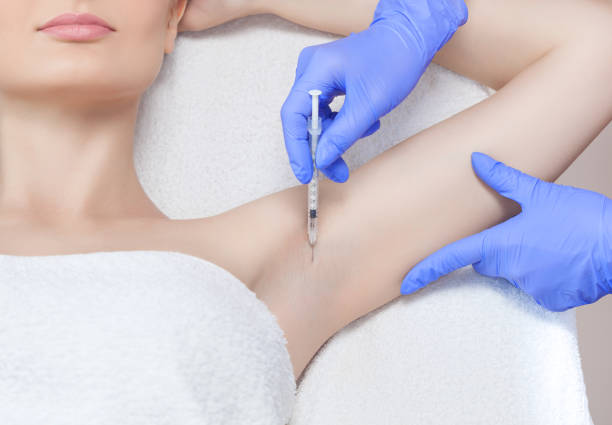 The doctor makes intramuscular injections of botulinum toxin in the underarm area against hyperhidrosis stock photo